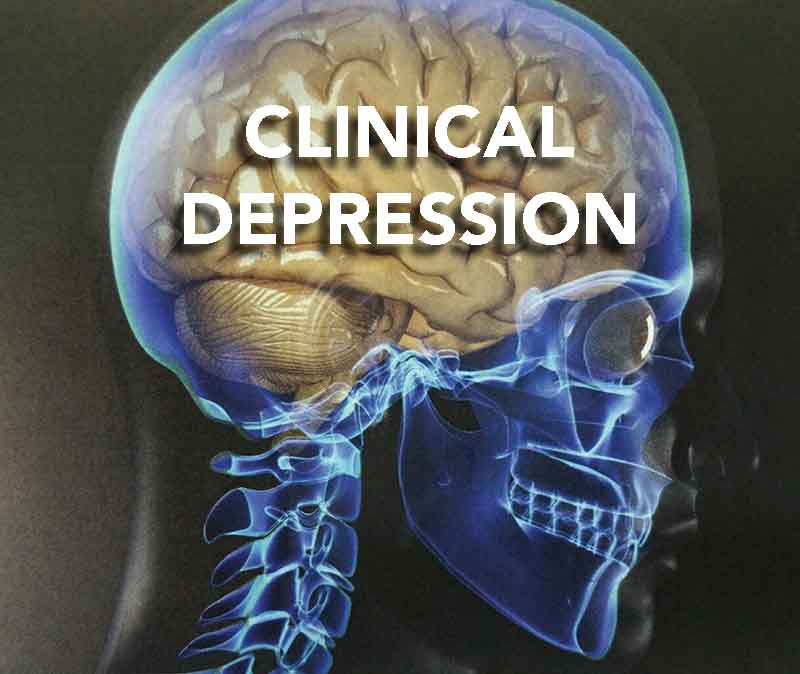 clinical-depression-brain